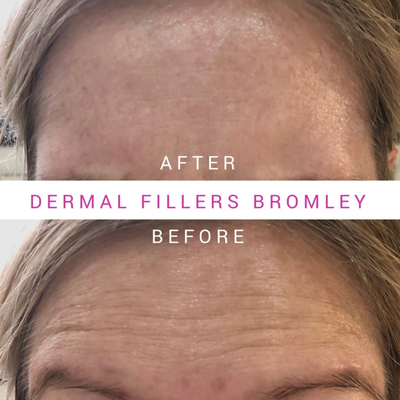 Botox In Bromley