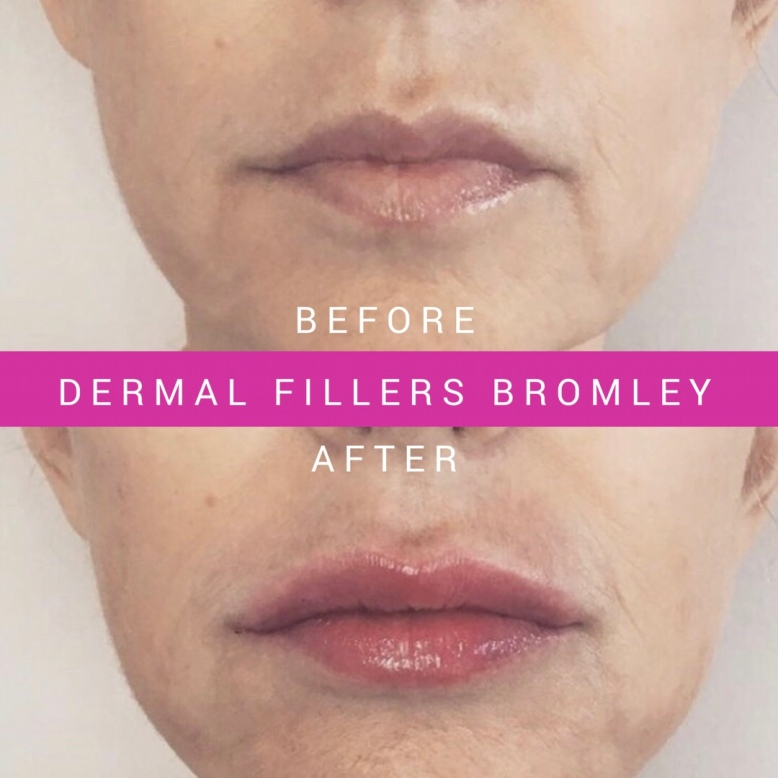 Juvederm Lip Fillers Bromley