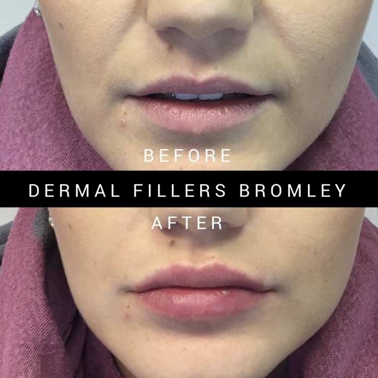 1ml Lip Fillers Bromley