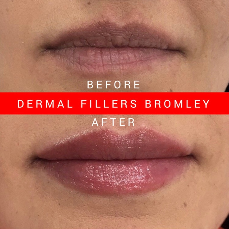 Lip Fillers Bromley