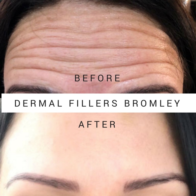 Botox Forehead Bromley
