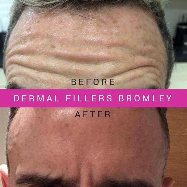 Botox For Men Bromley